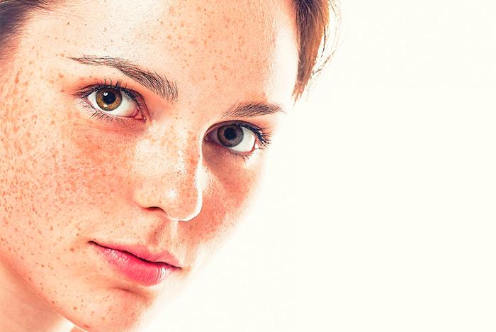 manchas y lesiones pigmentadas