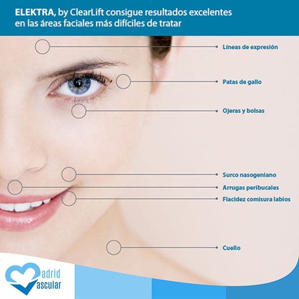 tratamiento láser de remodelación de la piel y lifting