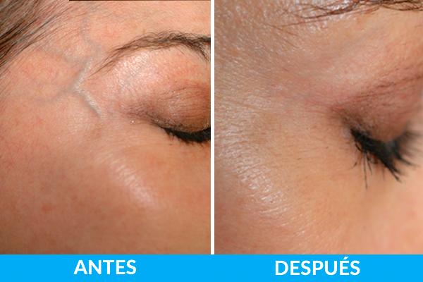 tratamiento facial lesiones vasculares