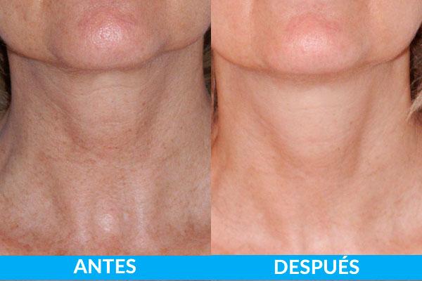 tratamiento manchas y lesiones pigmentadas