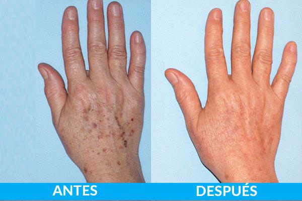 antes y después pacientes lesiones pigmentadas