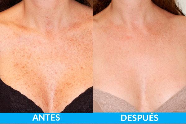 tratamiento láser de manchas antes y después