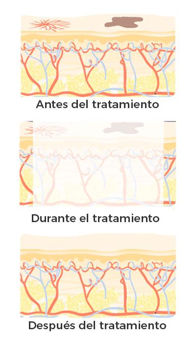 tratamiento láser para manchas