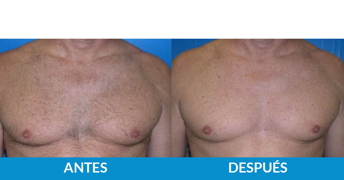 tratamiento antes y después fotodepilación médica