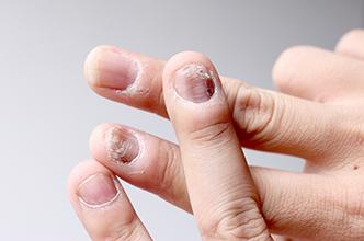 Tratamiento láser hongos en las uñas