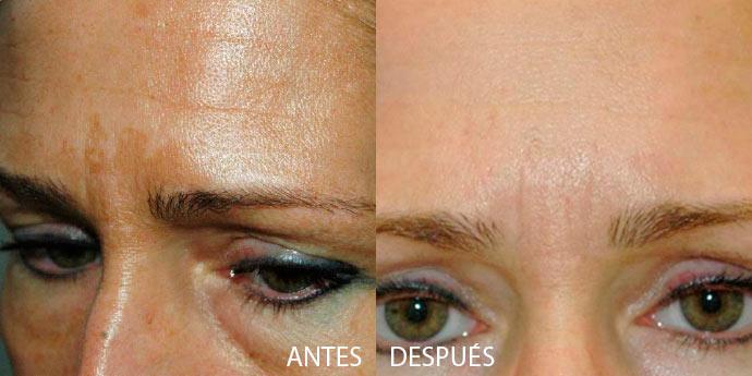 antes y después peeling facial Madrid